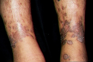 Paciente afectado de Sarcoma de Kaposi. Fuente: dermatoweb.net